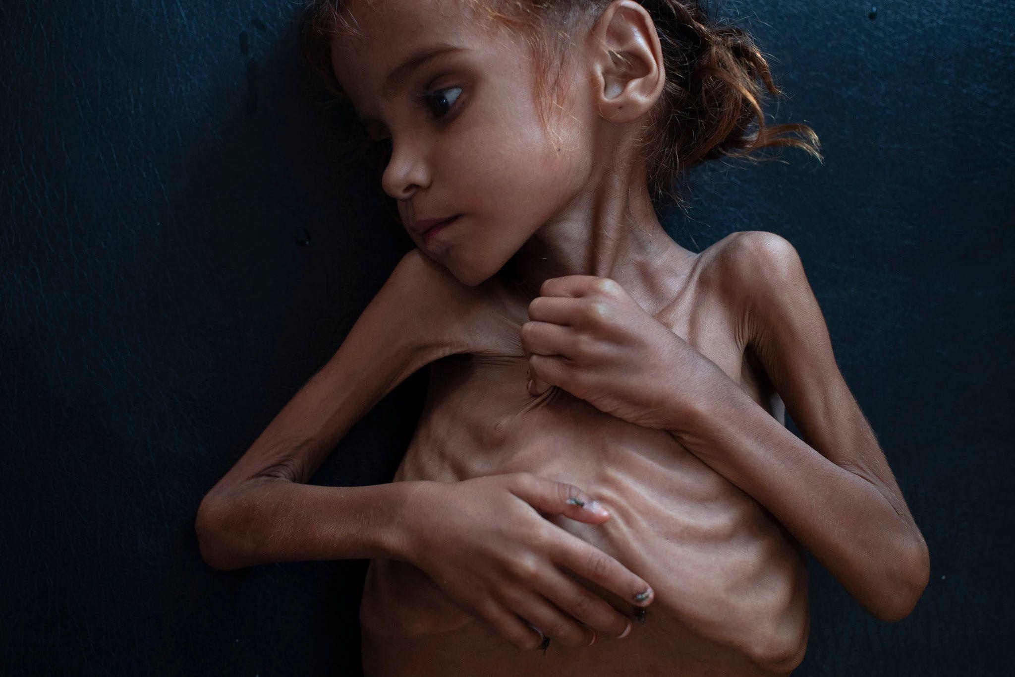 Η 7χρονη Αμάλ Χουσεΐν