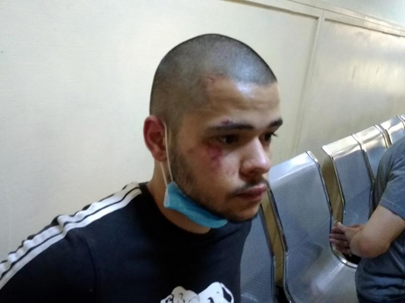 Σημάδια ξυλοδαρμού από αστυνομικούς φέρει ο υποψήφιος των πανελλαδικών που συνελήφθη στο συλλαλητήριο της Πέμπτης (Εικόνες)